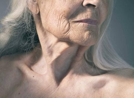 Rapamycin can help to fight aging